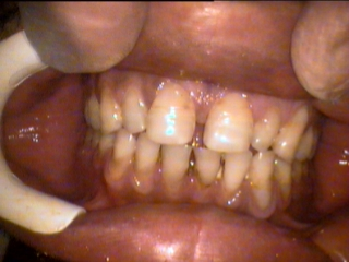Teeth not in the same arch plane
